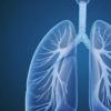 汉坦病毒肺综合征可能会导致某些人群患病