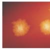 研究细菌的DNA指纹表明它可能通过食物分配传播