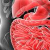 阿哌沙班降低胃肠道出血的风险