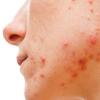 含有肌醇 海藻糖的面膜有助于成年女性痤疮