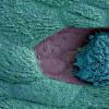 研究显示 阴道细菌可引发复发性尿路感染