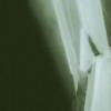 低血清DHEAS水平可预测老年男性骨折