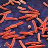 标准结核病诊断测试可以用适用于患者痰中结核菌的24小时基因测试代替