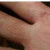 改变脂质 皮肤感染可能指向特应性皮炎的新个性化疗法