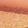 皮肤镜检查+三重光源可靠的玫瑰糠疹ID
