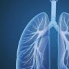 针对COPD的诊断和管理更新建议