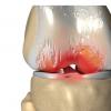 FDA在骨关节炎试验中发布关于终点的指导