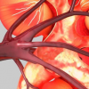 代谢物与肾衰退有关 T1DM中发生ESRD时间