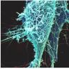 在恢复患者中发现肺部特异性埃博拉感染的潜在证据