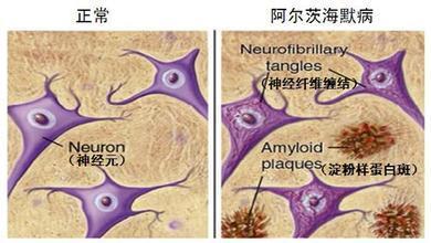阿尔茨海默氏症药物是治疗寄生性恰加斯病的有趣候选药物