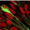 胎儿脑组织中的寨卡病毒对一种流行的抗生素有反应
