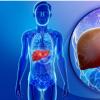 肝移植的新方法 使用受损的肝脏替代垂死的肝脏