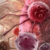 FDA批准OPKO即时医疗PSA测试