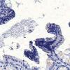 食物中毒细菌可能是克罗恩病的幕后黑手