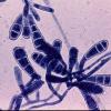 中国研究人员揭示氧化还原传感器蛋白在致病性分枝杆菌中的作用