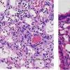 最新研究解释了为什么MRSA超级细菌杀死流感患者