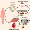 研究人员使用患者自己的细胞创建3D打印的心脏