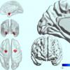 扁桃体神经元可以把握准确诊断单相抑郁症 双相情感障碍的关键