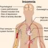 研究人员确定与失眠有关的新基因区域