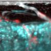 科学家发现长骨中的新型血管