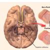 咖啡因可能有助于早期诊断帕金森氏病