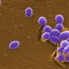 研究说 奥陶纪时期出现了地球上第一个肠球菌