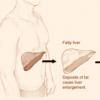 研究人员确定了引起肝纤维化的蛋白