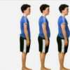 科学家说 脂肪和骨骼质量具有遗传联系