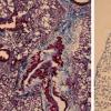 抗纤维化肽显示出有望解决间质性肺疾病