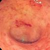 研究表明 奥扎尼莫德可有效治疗溃疡性结肠炎