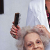 激光治疗有助于雄激素性脱发
