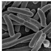 研究呼吁在胶囊化粪便移植物中筛选抗药性大肠杆菌