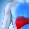 超过一半的肝移植受者出现脂肪变性