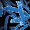 结核病有可能从动物园的象传给人们