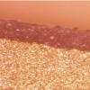 烧蚀分级激光Tx有望治疗光化性角化病