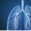 抑制mTOR可恢复COPD中的皮质类固醇敏感性