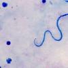 乌干达线虫寄生虫曼森氏菌的预测风险图