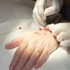 Mohs与早期侵袭性黑色素瘤的OS息息相关