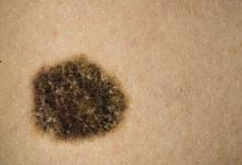 冷冻疗法加咪喹莫特有效治疗皮肤黑色素瘤