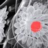 映射乳腺癌细胞分化有助于理解癌症的发展