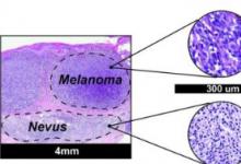 MicroRNA生物标志物使黑色素瘤的诊断更加客观