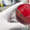 有希望的新抗菌药物可以抗药性MRSA感染