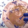 Zika小头畸形风险与母亲的抗体有关