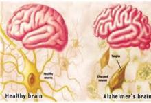 阿尔茨海默氏病药物可逆转青少年酗酒引起的脑损伤