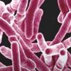 可逆的结核基因突变发现可能导致治疗方法的改善