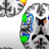 遗传变异将左撇子与大脑结构和精神疾病联系在一起