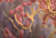 黑色素瘤检查点疗法与纳米疫苗联合使用更有效