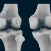 人类正在失去与骨关节炎相关的膝骨 现在正在卷土重来