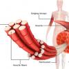 细胞通讯障碍触发遗传性肌肉疾病中的脂肪细胞积累