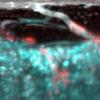 跨皮质血管 科学家发现长骨中的新型血管